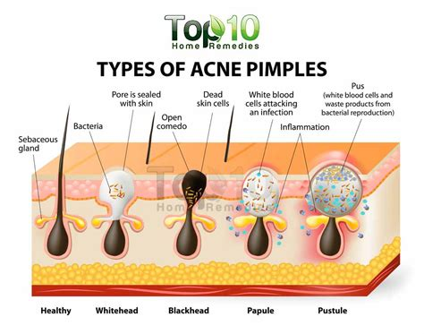 How To Treat Blind Pimples home remedies for pimples top 10 home remedies