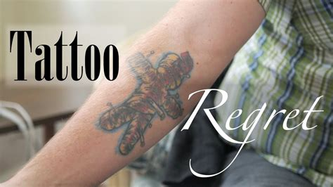 toronto tattoo removal regret laser and non laser removal