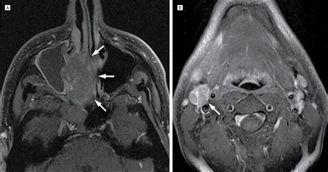 ostiomeatal unit pattern of sinus disease a head and neck radiologist s perspective on best