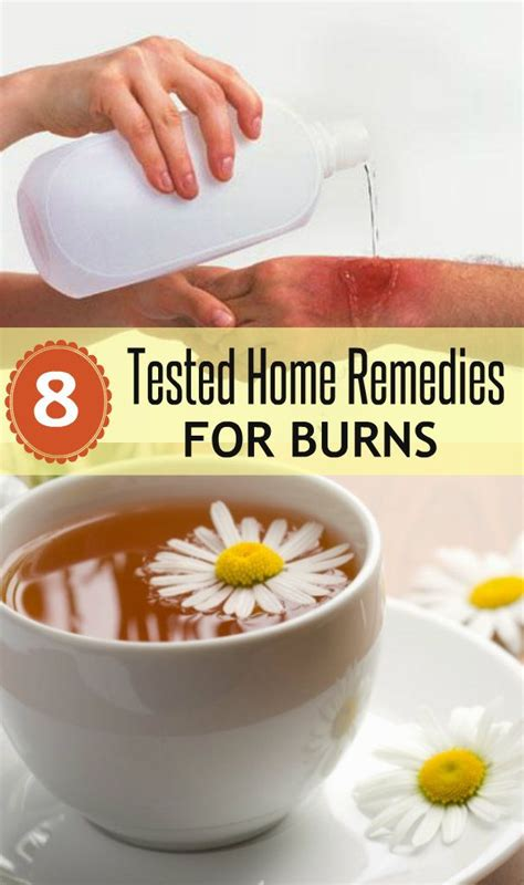 100 ideas to try about homeopathy burns relief