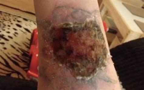 chemical tattoo removal removal kit burns in s arm daily