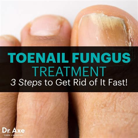 Healthy Steps To Get Rid Of by Best 25 Toenail Fungus Treatment Ideas On