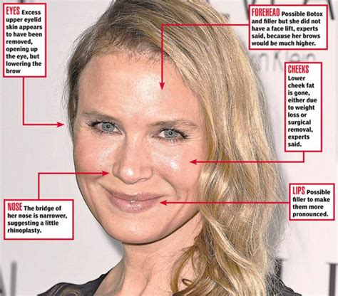 Renee Zellweger Has A Brand New by Renee Zellweger S New What The Surgeons Say Ny