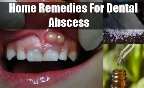 home remedies for dental abscess ways to get rid of a