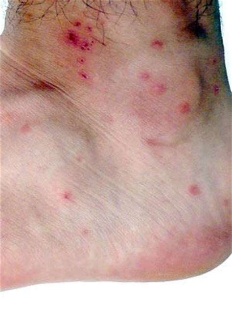 how to identify bed bug bites image gallery itchy bug bites