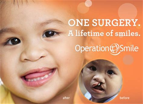 Turns Back On Operation Smile by Operation Smile Microgiving