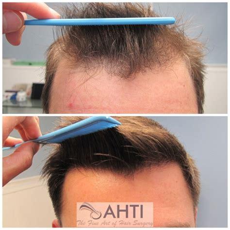 hair transplants in tj reviews gallery