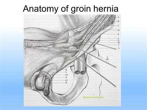 hernia location diagram abdominal hernias and surgical meshes ppt