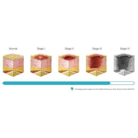 materasso decubito domus 3 materasso antidecubito