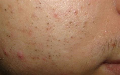 Black Dots Comeing Out Of Skin In Detox Bath by How To Remove Black Spots On Fast Naturally In 3