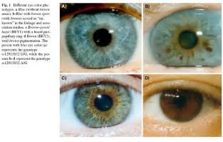 eye color mutations blue 171 the evolution medicine review