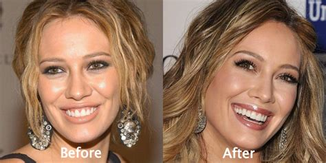 Tarek Christina by Hilary Duff Plastic Surgery Before And After Photos