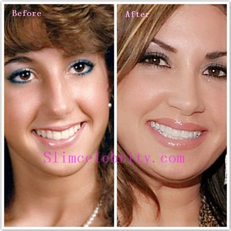 celebrity neck lift 188 best before and after photos images on pinterest