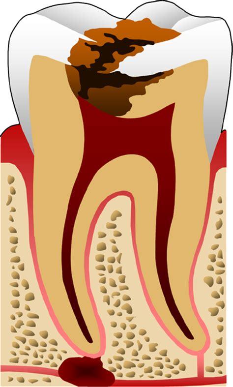 Proses Pemutihan Gigi pengertian karies gigi proses karies gigi faktor penyebab karies gigi macam macam karies gigi