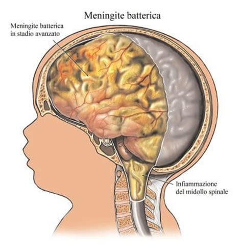 mal di testa e collo rigidit 224 muscolare al collo e alle gambe cause e rimedi