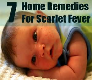 fever home remedies scarlet fever home remedies treatments and cures