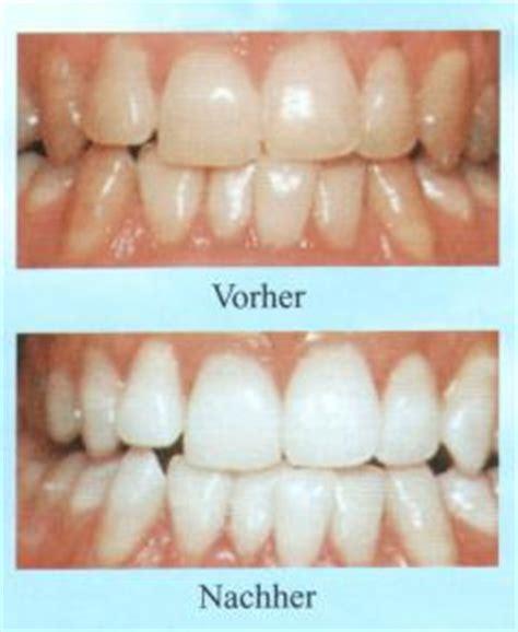 Zähne Polieren Beim Zahnarzt by Z 195 164 Hne Aufhellen Z Hne Aufhellen Einebinsenweisheit