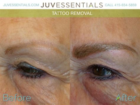 tattoo removal san francisco permanent makeup removal archives juvessentials