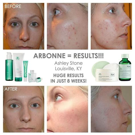 Arbonne Detox Before And After by 46 Best Images About My Arbonne On My