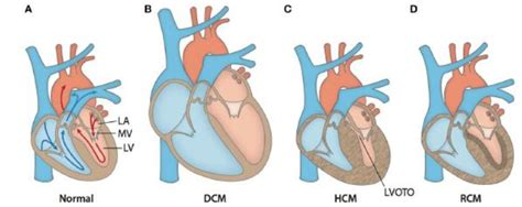 cardiomyopathy after c section a genetic variant can predispose south asians to