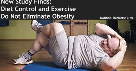 Diet Exercise Or Surgery by Learn About Bariatric Surgery Https Www