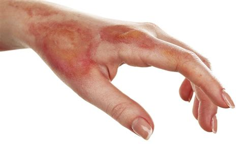imagenes reales de quemaduras de primer grado 191 c 243 mo tratar quemaduras de primer grado