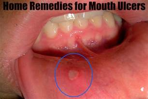 signs symptoms and effective home remedies for
