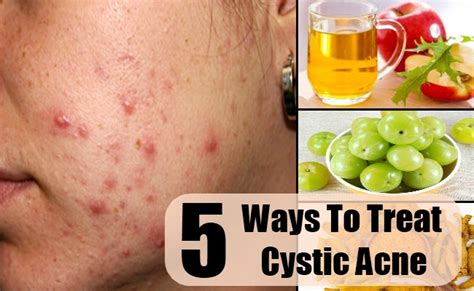 cystic acne and vitamins surrealcolor
