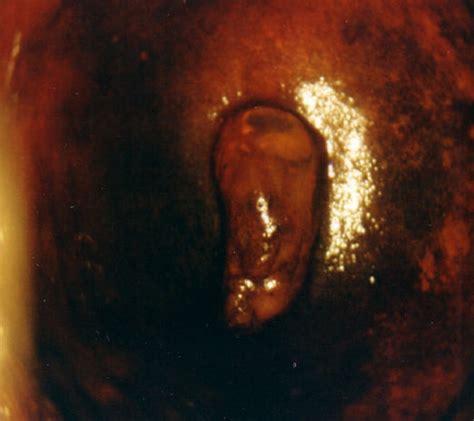 biopsia portio dott carmelo parisi colposcopia e biopsia cervicale