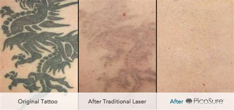 laser tattoo removal sessions picosure 174 removal uk andrea catton laser clinic