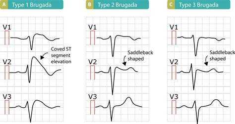 brugada pattern types brugada syndrome ecg clinical features and management