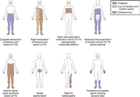 Brown S Regional Anesthesia Review Freesul 1 paraplegia and spinal cord syndromes neupsy key