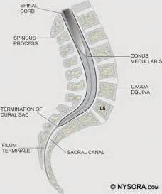 spinal anesthesia nysora the new york school of regional