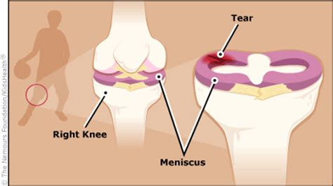 inner tear meniscus tears