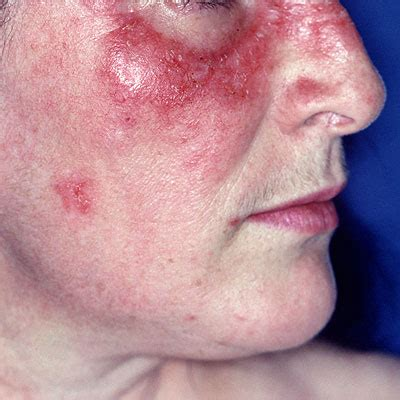 butterfly rash how lupus is diagnosed health