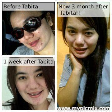 Tabita Soap Original original tabita exclusive set skincare lazada malaysia