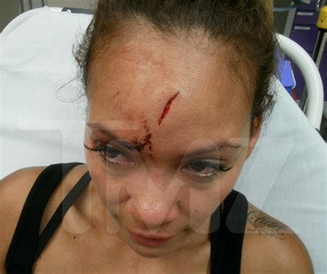 evelyn lozada s bloody head photo from domestic violence