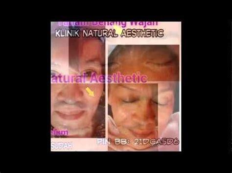 Benang Pancing Yg Bagus hub 021 888 55112 tanam benang untuk wajah klinik