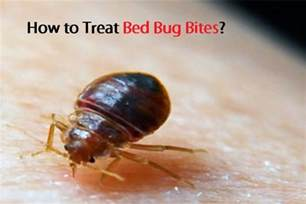 how to treat bed bug bites
