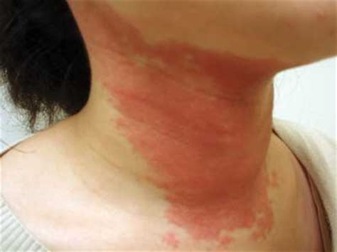itchy rash on face and neck itchy neck causes symptoms treatment rash pictures