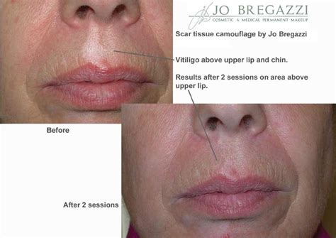 medical tattooing for scars scar camouflage for vitiligo jo bregazzi