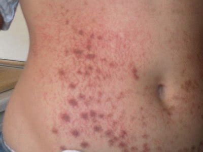 hyperpigmentation after laser tattoo removal hyperpigmentation after laser hair removal doctor answers