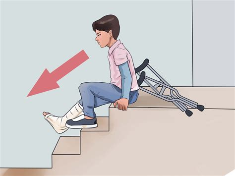 Stair Climbing Chair How To Walk On Crutches With Pictures Wikihow