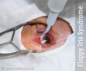 floppy iris syndrome  symptoms prevention