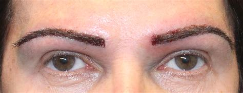 eyebrow tattoo los angeles botched eyebrow transplant archives hair transplant los