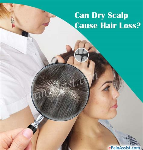 Can Using A Hair Dryer Cause Dandruff can scalp cause hair loss om hair