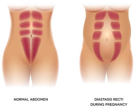 diastasis recti exercises     home