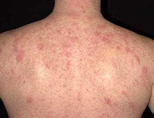 powered by mybb infections in the back eczema on back www pixshark com images galleries with