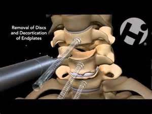 cervical surgery c5 c6 c7
