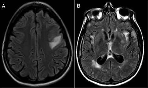 Copy Mri The Central Nervous System primary angiitis of the central nervous system avoiding misdiagnosis and missed diagnosis of a